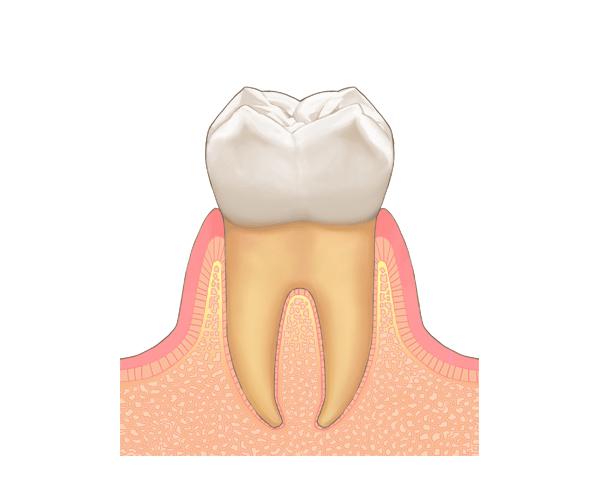 歯周病にならないためには